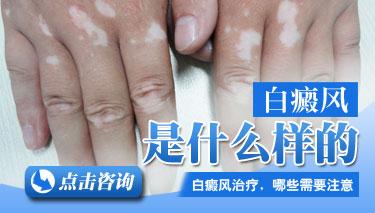 手部得白癜风会给患者的生活带来什么影响?